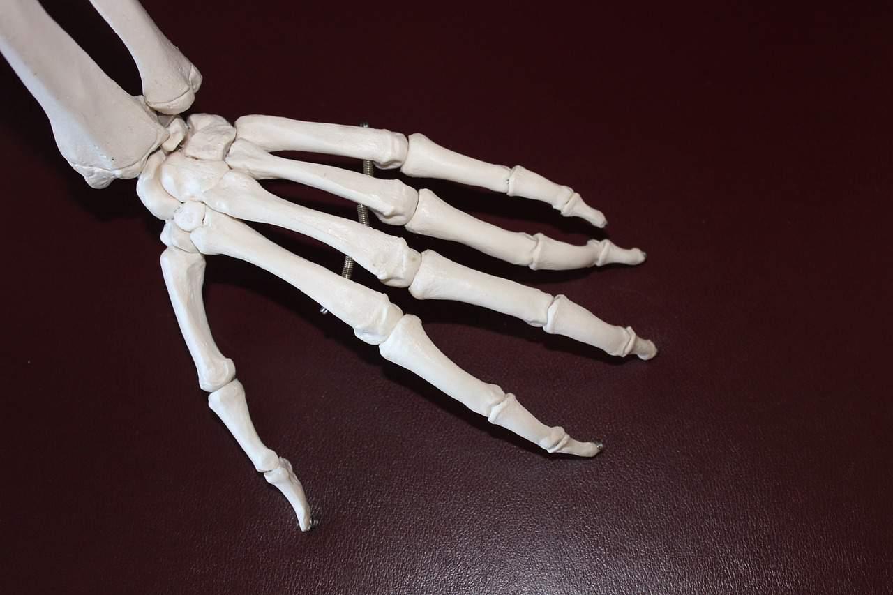 formas artritis