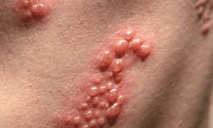 aspecto del herpes zoster